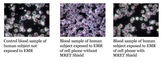 Image of live cell analysis.